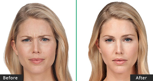 Botox Before After Results