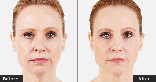 Juvederm - Before/After Treatment
