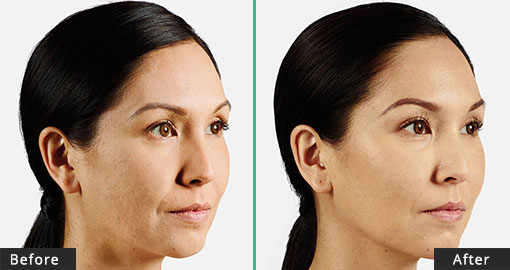 Juvederm Voluma Before & After