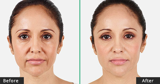 Juvederm XC- Before/After Treatment